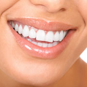 Porcelain Veneers Specialist in Los Angeles